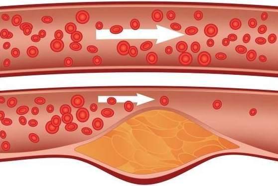 arteria-grasa-obesidad-