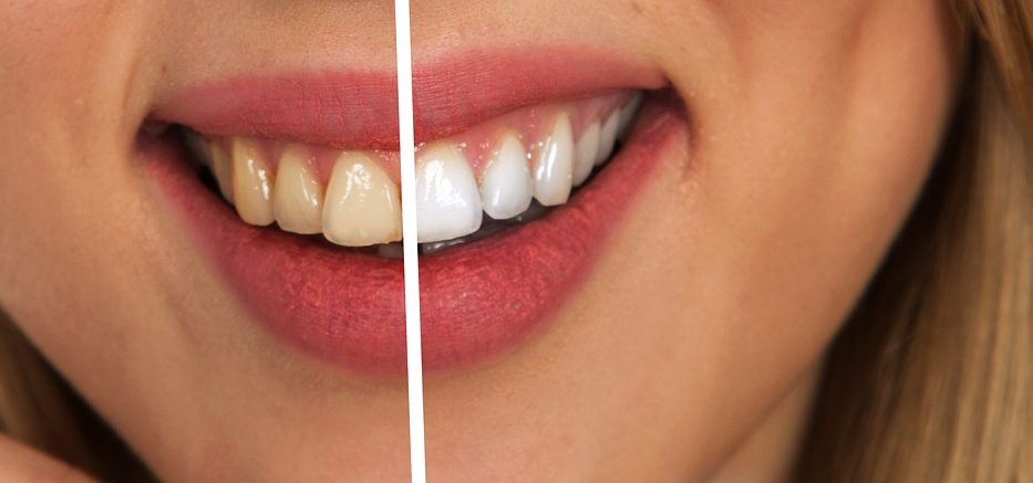tooth-2414909_1280